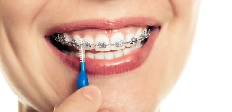 Reinigung der Zahnspange mit Bürstchen
