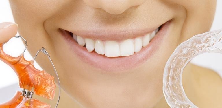 Kieferorthopädie Zahnspange und Schiene